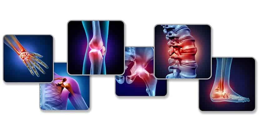 consultate il vostro medico in caso di dolori ricorrenti alle articolazioni