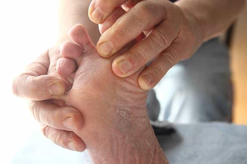 Il piede d'atleta è una condizione causata da funghi